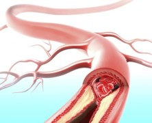 Stress Can Clog Your Arteries